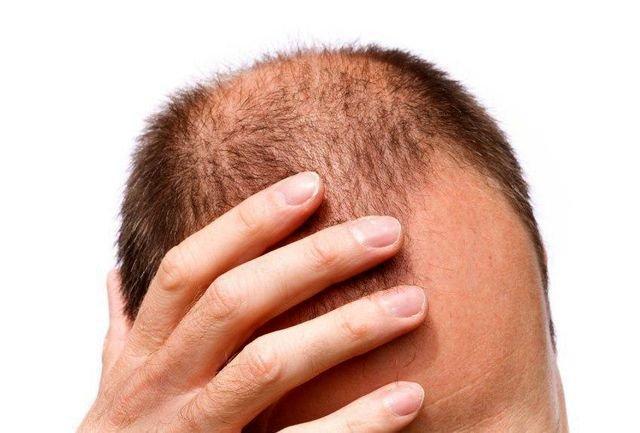 امیدی جدید برای درمان ریزش مو، رشد دوباره مو با یاری نور LED